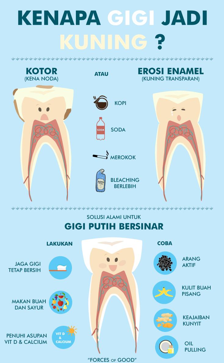 Cara Memutihkan Gigi Secara Alami Unik Tapi Efektif Komunitas