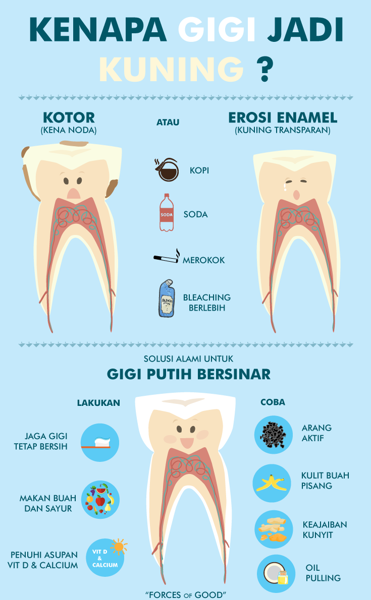 Cara Memutihkan Gigi Secara Alami Unik Tapi Efektif Ramia